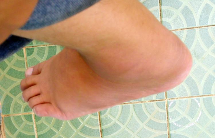 kaki-keseleo
